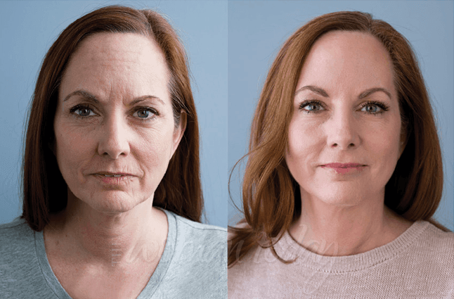 GenF20 Plus Before And After Results