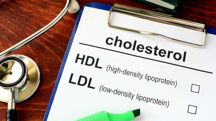 Testosterone And Cholesterol